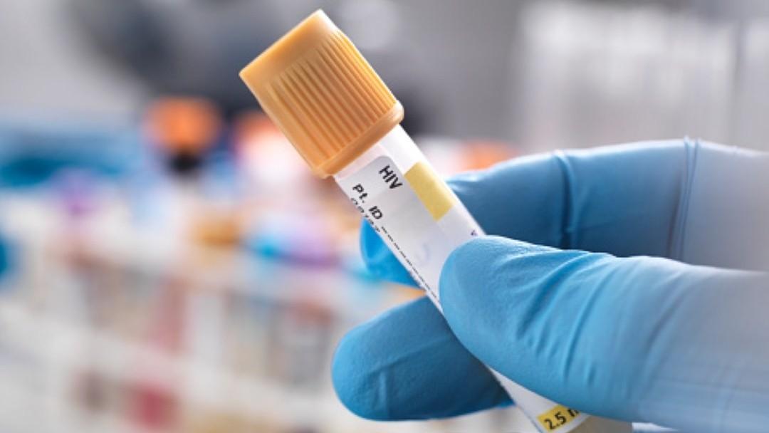 Casos VIH y Sida en CDMX