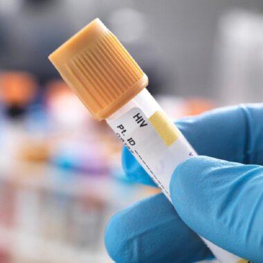 VIH Segundo Paciente Curado