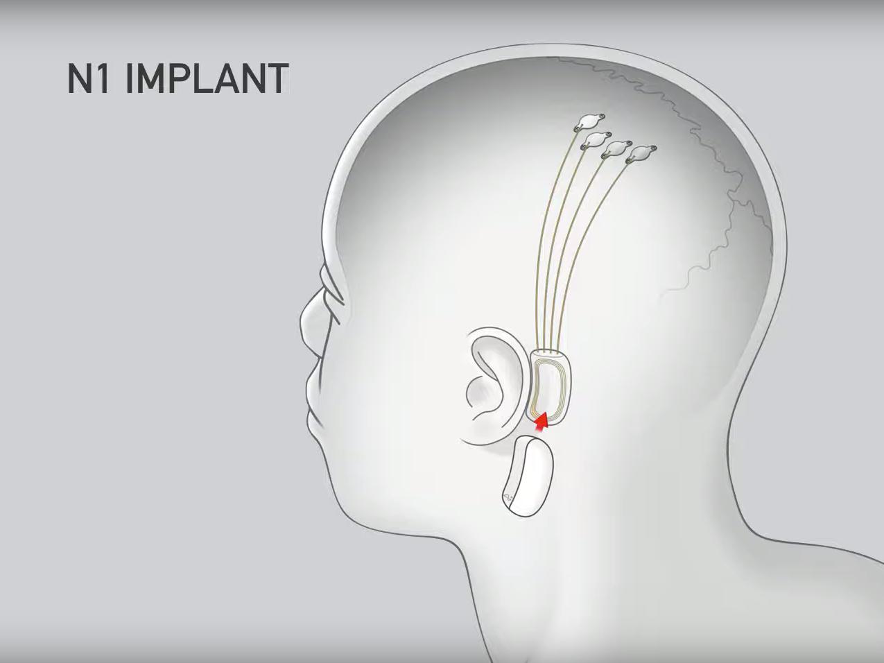 Elon Musk, Neuralink, Neuralink Chip, Neuralink Implante
